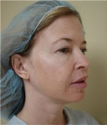 Eyelid Surgery Before Photo by Kimberly Henry, MD; Greenbrae, CA - Case 38491