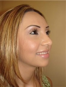 Rhinoplasty After Photo by Kimberly Henry, MD; Greenbrae, CA - Case 38499