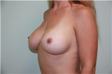 Breast Augmentation After Photo by Luis Vinas, MD, FACS; West Palm Beach, FL - Case 30730