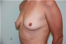 Breast Augmentation Before Photo by Luis Vinas, MD, FACS; West Palm Beach, FL - Case 30730