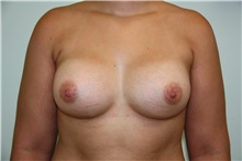 Breast Augmentation After Photo by Luis Vinas, MD, FACS; West Palm Beach, FL - Case 30731