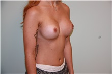 Breast Augmentation After Photo by Luis Vinas, MD, FACS; West Palm Beach, FL - Case 30734