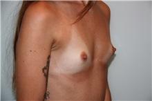 Breast Augmentation Before Photo by Luis Vinas, MD, FACS; West Palm Beach, FL - Case 30734