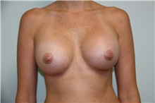 Breast Augmentation After Photo by Luis Vinas, MD, FACS; West Palm Beach, FL - Case 30735
