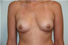 Breast Augmentation Before Photo by Luis Vinas, MD, FACS; West Palm Beach, FL - Case 30735
