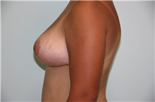 Breast Lift After Photo by Luis Vinas, MD, FACS; West Palm Beach, FL - Case 30738