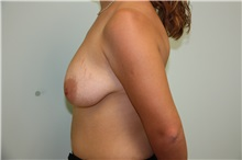 Breast Lift Before Photo by Luis Vinas, MD, FACS; West Palm Beach, FL - Case 30738