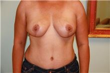Breast Lift After Photo by Luis Vinas, MD, FACS; West Palm Beach, FL - Case 30739