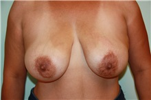 Breast Lift Before Photo by Luis Vinas, MD, FACS; West Palm Beach, FL - Case 30739