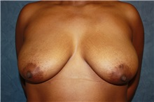 Breast Lift Before Photo by Luis Vinas, MD, FACS; West Palm Beach, FL - Case 30741