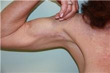 Arm Lift After Photo by Luis Vinas, MD, FACS; West Palm Beach, FL - Case 30744