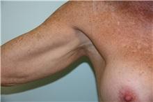 Arm Lift Before Photo by Luis Vinas, MD, FACS; West Palm Beach, FL - Case 30744