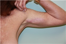 Arm Lift After Photo by Luis Vinas, MD, FACS; West Palm Beach, FL - Case 30745