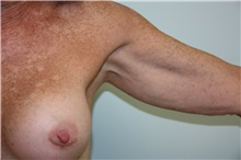 Arm Lift Before Photo by Luis Vinas, MD, FACS; West Palm Beach, FL - Case 30745