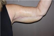 Arm Lift After Photo by Luis Vinas, MD, FACS; West Palm Beach, FL - Case 30746