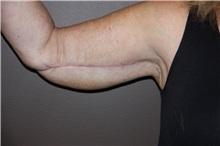 Arm Lift After Photo by Luis Vinas, MD, FACS; West Palm Beach, FL - Case 30747