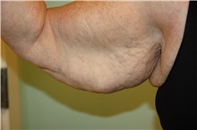 Arm Lift Before Photo by Luis Vinas, MD, FACS; West Palm Beach, FL - Case 30747
