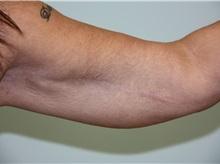 Arm Lift After Photo by Luis Vinas, MD, FACS; West Palm Beach, FL - Case 30748