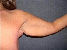 Arm Lift Before Photo by Luis Vinas, MD, FACS; West Palm Beach, FL - Case 30748