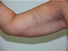 Arm Lift After Photo by Luis Vinas, MD, FACS; West Palm Beach, FL - Case 30749