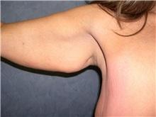 Arm Lift Before Photo by Luis Vinas, MD, FACS; West Palm Beach, FL - Case 30749