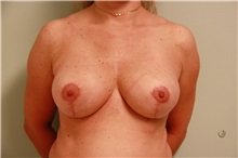 Breast Reduction After Photo by Luis Vinas, MD, FACS; West Palm Beach, FL - Case 30750