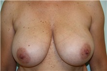 Breast Reduction Before Photo by Luis Vinas, MD, FACS; West Palm Beach, FL - Case 30750