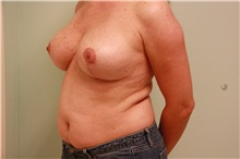 Breast Reduction After Photo by Luis Vinas, MD, FACS; West Palm Beach, FL - Case 30752