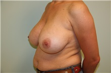 Breast Reduction Before Photo by Luis Vinas, MD, FACS; West Palm Beach, FL - Case 30752
