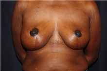 Breast Reduction After Photo by Luis Vinas, MD, FACS; West Palm Beach, FL - Case 30753