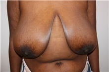 Breast Reduction Before Photo by Luis Vinas, MD, FACS; West Palm Beach, FL - Case 30753