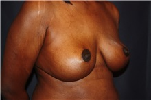 Breast Reduction After Photo by Luis Vinas, MD, FACS; West Palm Beach, FL - Case 30754