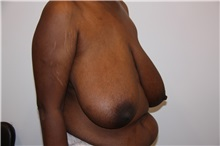 Breast Reduction Before Photo by Luis Vinas, MD, FACS; West Palm Beach, FL - Case 30754