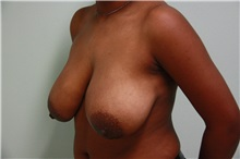 Breast Lift Before Photo by Luis Vinas, MD, FACS; West Palm Beach, FL - Case 30756