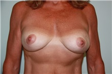 Breast Reconstruction After Photo by Luis Vinas, MD, FACS; West Palm Beach, FL - Case 30757