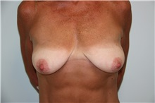Breast Reconstruction Before Photo by Luis Vinas, MD, FACS; West Palm Beach, FL - Case 30757