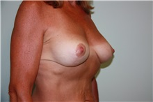 Breast Reconstruction After Photo by Luis Vinas, MD, FACS; West Palm Beach, FL - Case 30758
