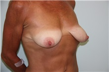 Breast Reconstruction Before Photo by Luis Vinas, MD, FACS; West Palm Beach, FL - Case 30758