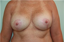 Breast Reconstruction After Photo by Luis Vinas, MD, FACS; West Palm Beach, FL - Case 30760