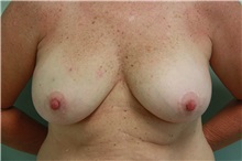 Breast Reconstruction Before Photo by Luis Vinas, MD, FACS; West Palm Beach, FL - Case 30760