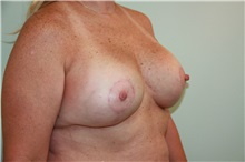 Breast Reconstruction After Photo by Luis Vinas, MD, FACS; West Palm Beach, FL - Case 30761