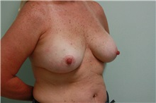 Breast Reconstruction Before Photo by Luis Vinas, MD, FACS; West Palm Beach, FL - Case 30761
