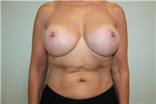 Breast Reconstruction After Photo by Luis Vinas, MD, FACS; West Palm Beach, FL - Case 30762