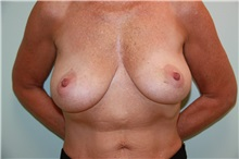 Breast Reconstruction Before Photo by Luis Vinas, MD, FACS; West Palm Beach, FL - Case 30762