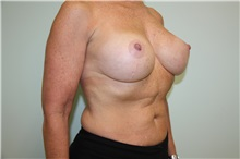 Breast Reconstruction After Photo by Luis Vinas, MD, FACS; West Palm Beach, FL - Case 30763
