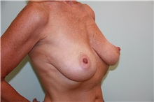 Breast Reconstruction Before Photo by Luis Vinas, MD, FACS; West Palm Beach, FL - Case 30763