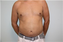 Liposuction After Photo by Luis Vinas, MD, FACS; West Palm Beach, FL - Case 30766