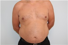 Liposuction Before Photo by Luis Vinas, MD, FACS; West Palm Beach, FL - Case 30766