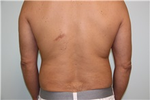 Liposuction After Photo by Luis Vinas, MD, FACS; West Palm Beach, FL - Case 30767