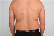 Liposuction Before Photo by Luis Vinas, MD, FACS; West Palm Beach, FL - Case 30767